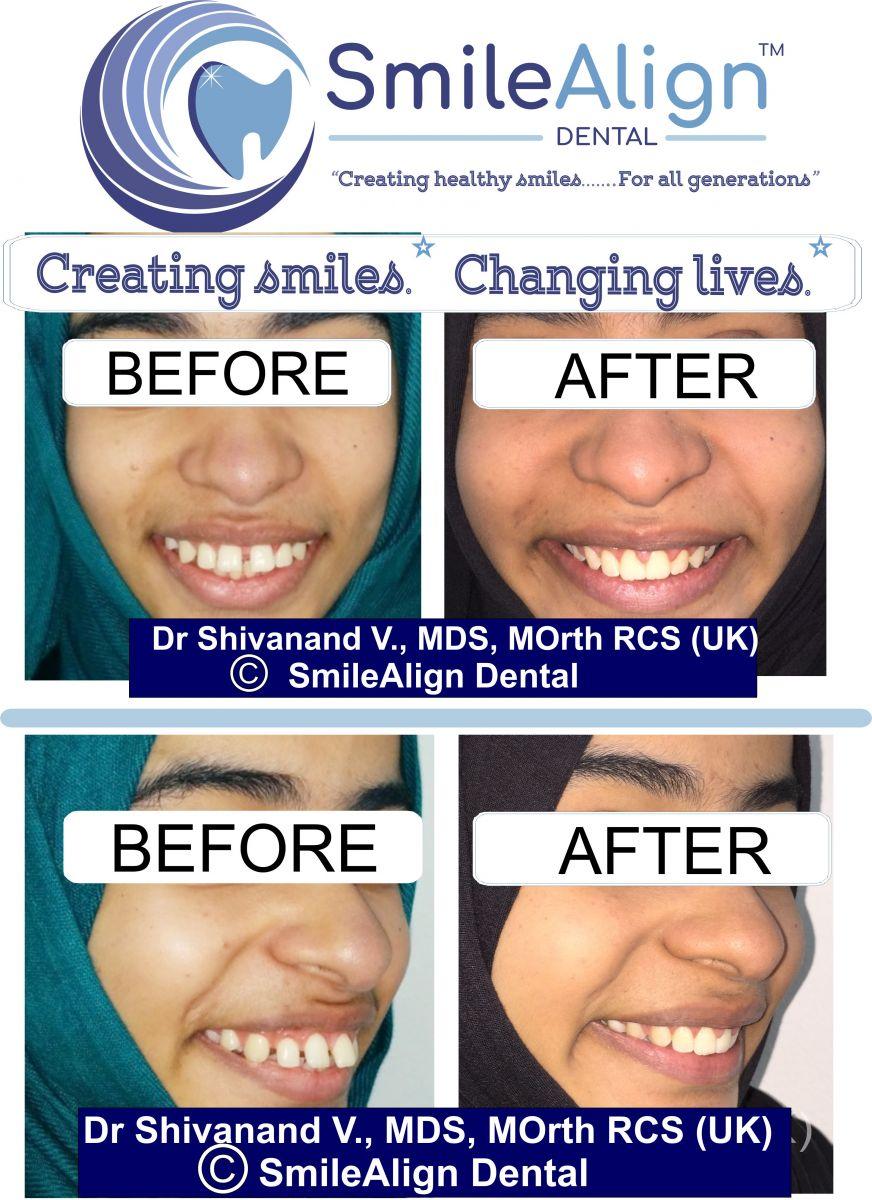 Gallery - SmileAlign Dental